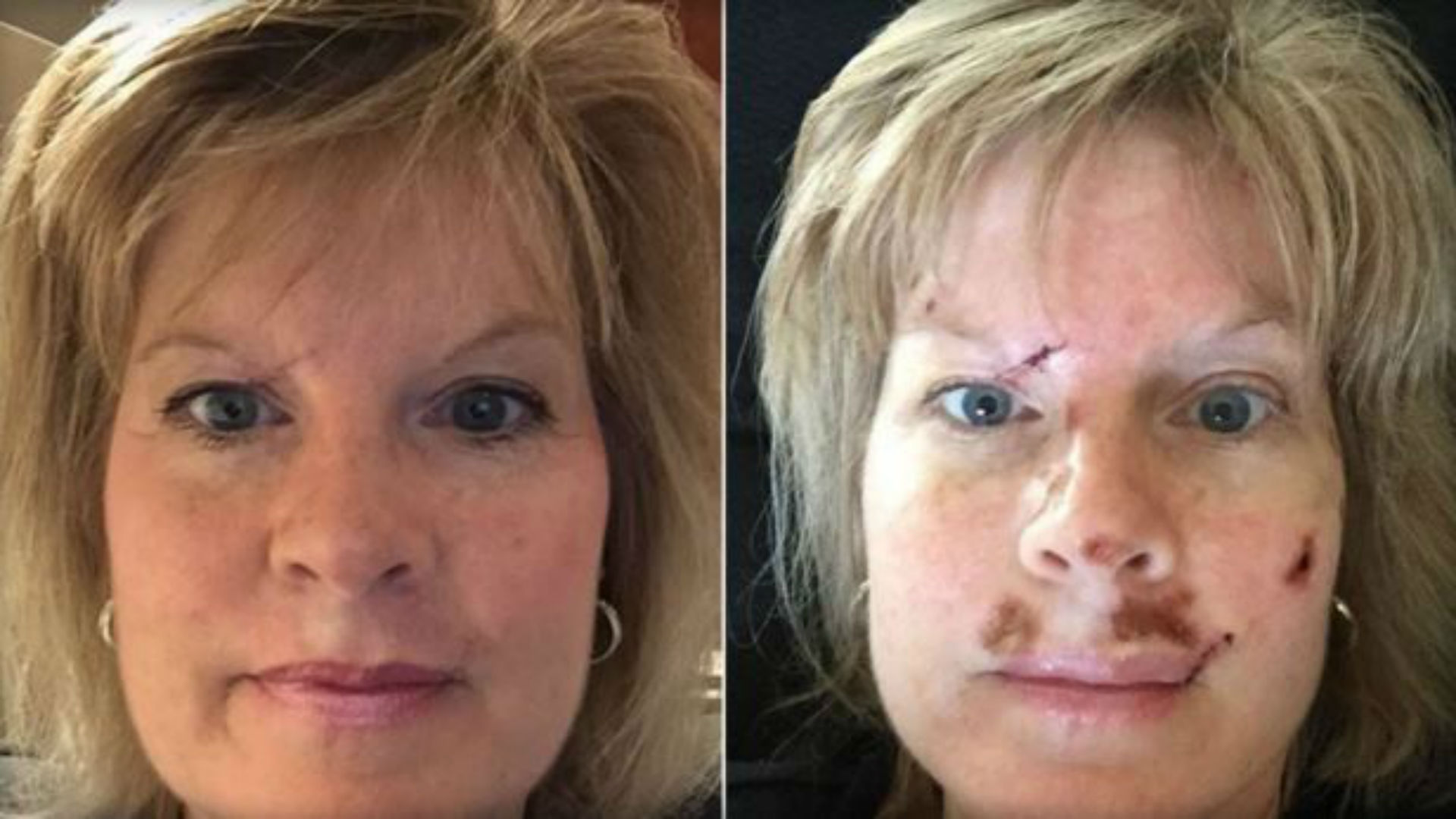Woman Shares Graphic Images To Spread Skin Cancer Warning Wreg Com